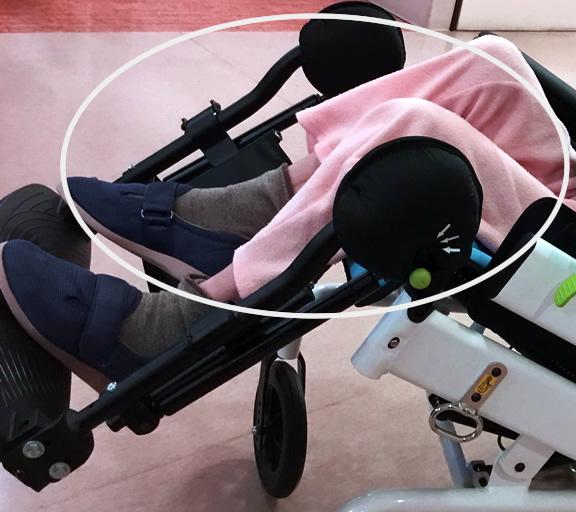ジュディッタ事例 写真1 拘縮で膝が上がった様子