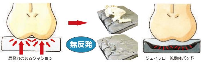 床ずれ(褥瘡)の予防と再発防止 JAY